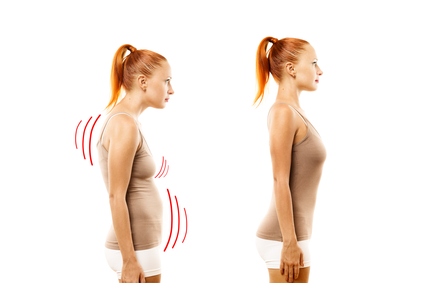 Women with Poor Posture